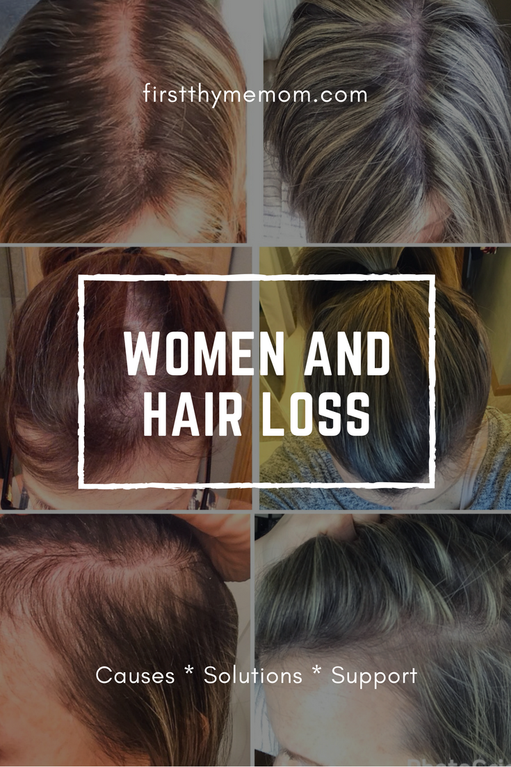 Women And Hair Loss: Causes, Solutions, and Support
