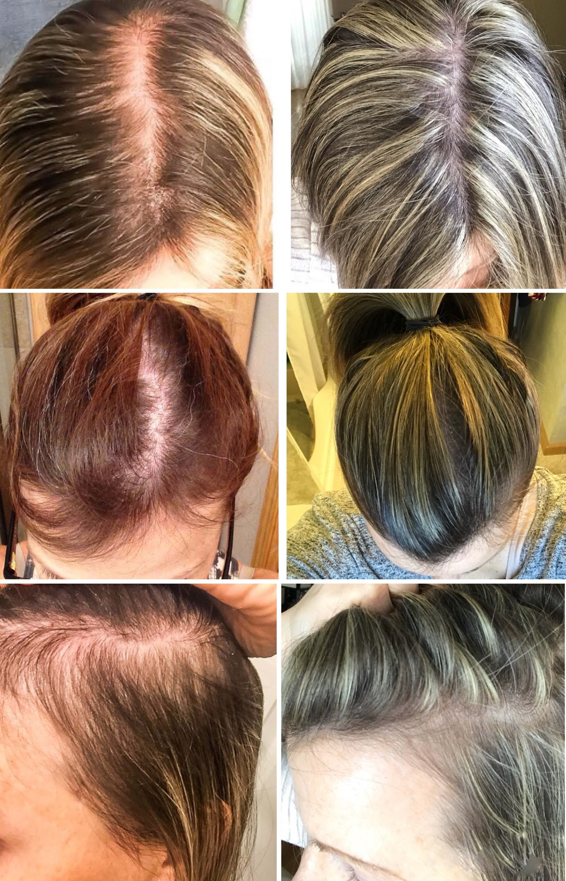 Women And Hair Loss: Causes, Solutions, and Support. Female hair loss. Hair loss after pregnancy. Postpartum hair loss.