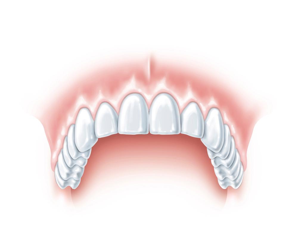 1211412-S_tooth_XiVE_d-D.jpg