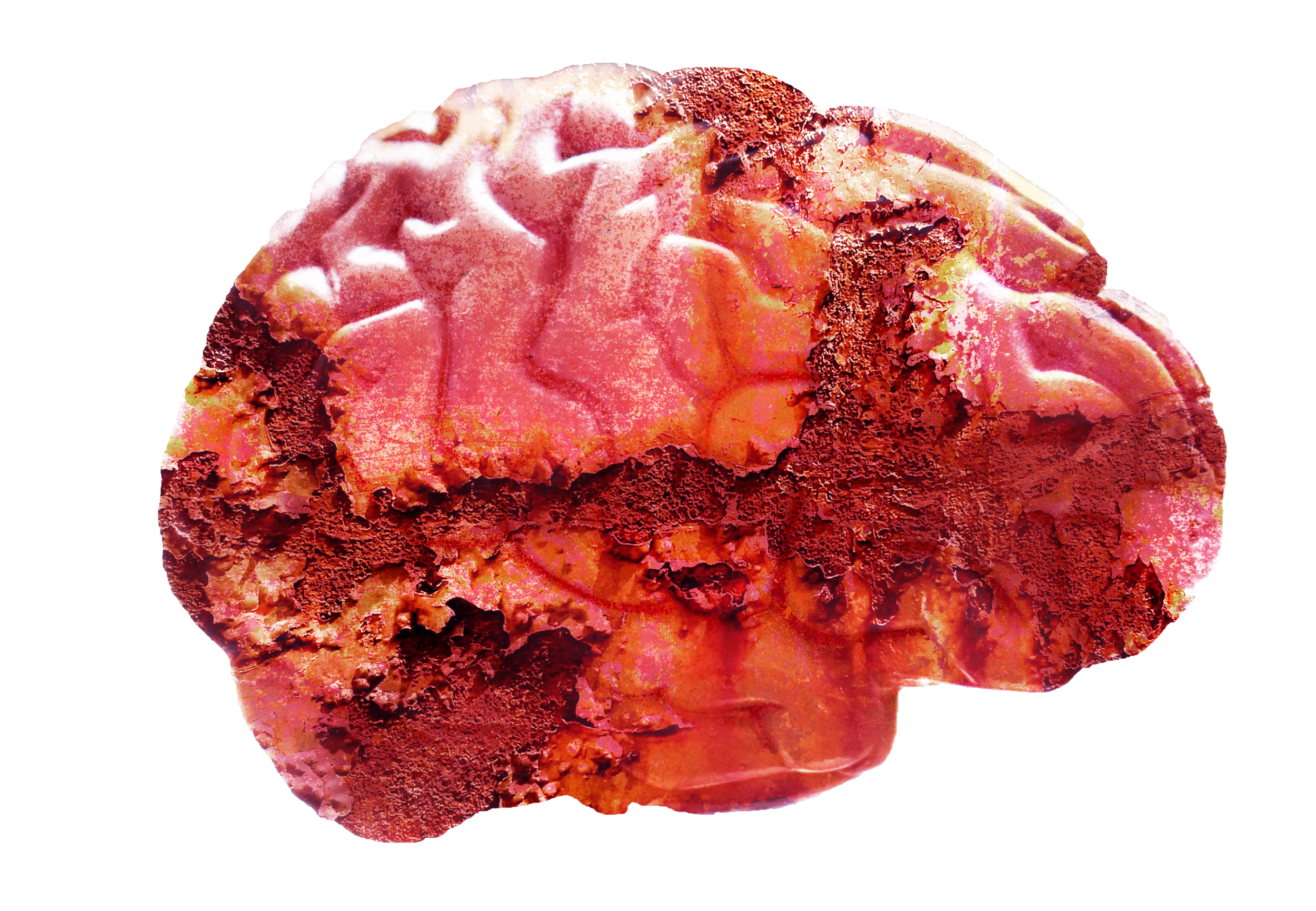 rust-brain-final.png