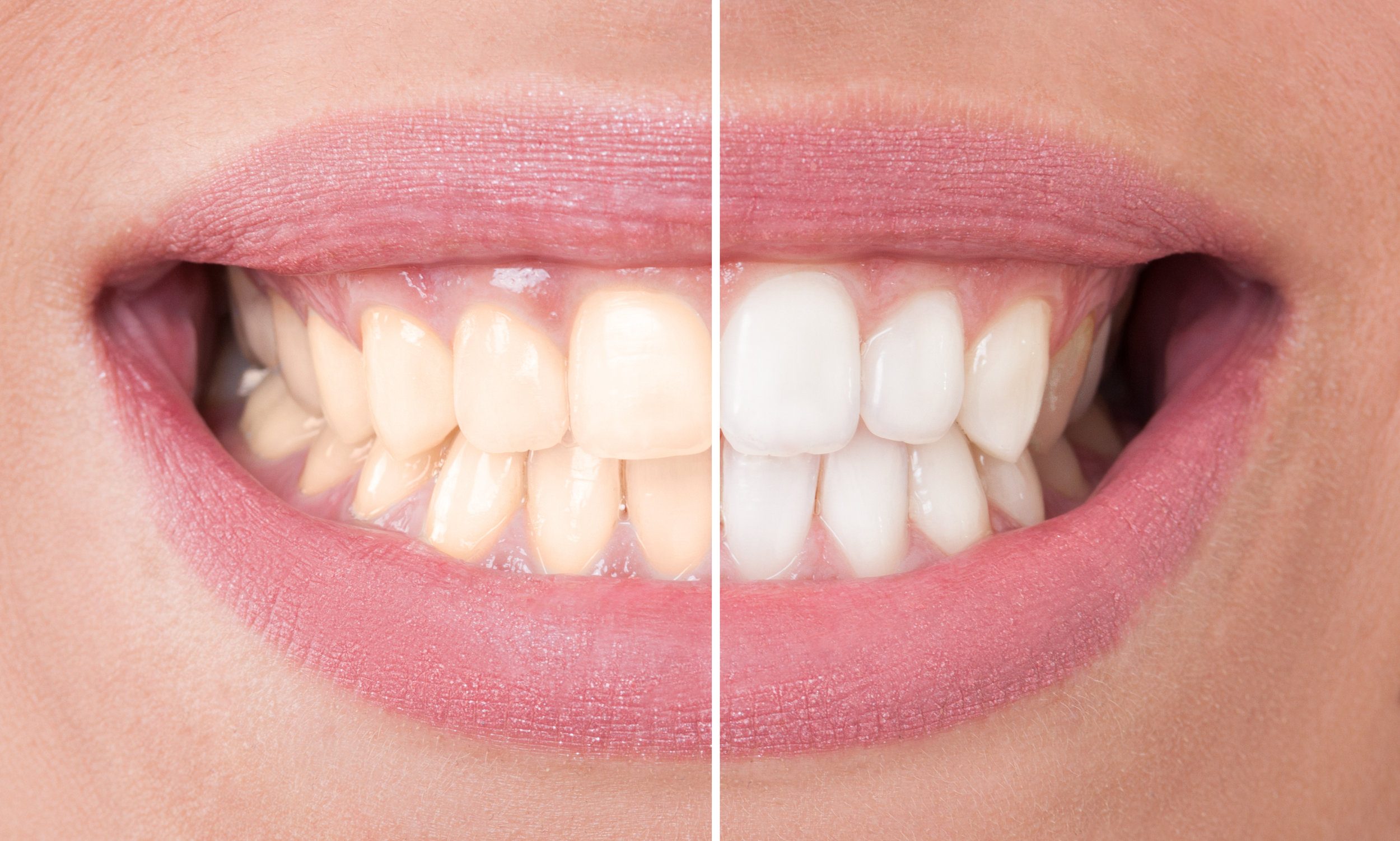 Blanchiment dentaire avant et après