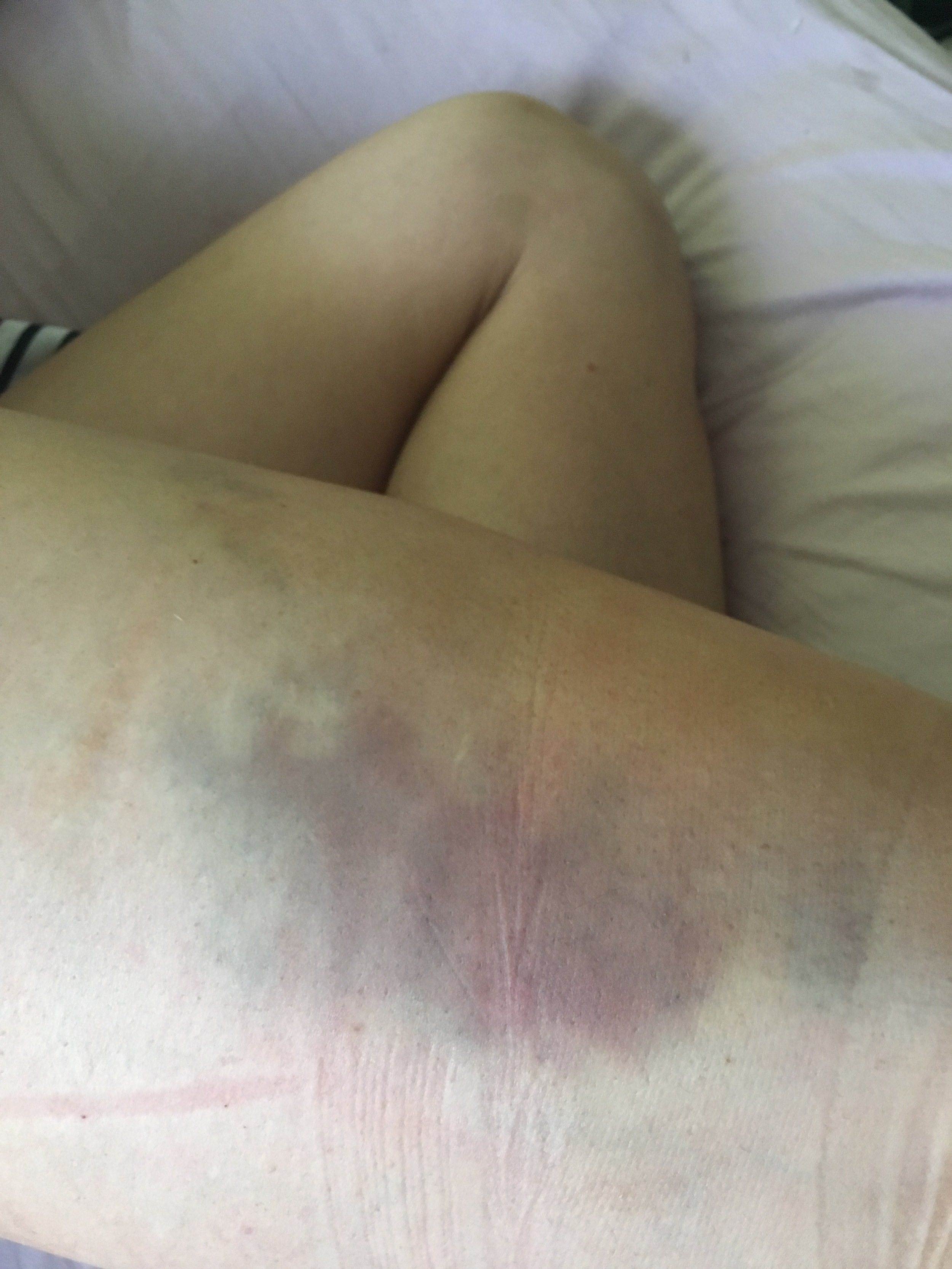 What my leg looked like 2-3 weeks post surgery