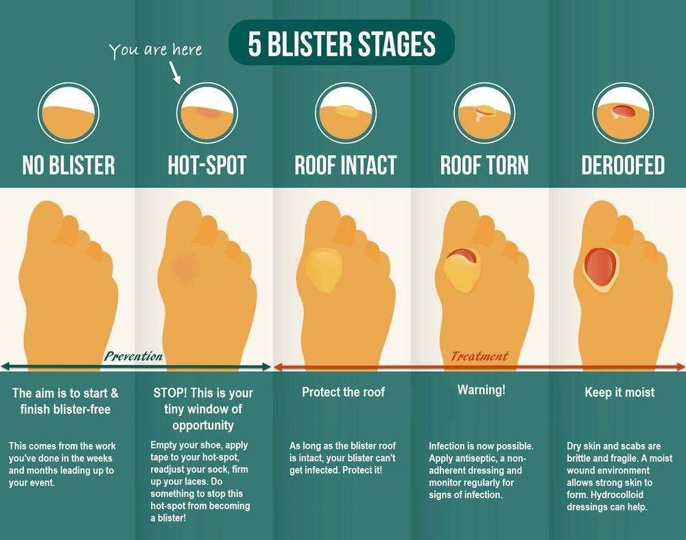 The Five Stages of Blister Development
