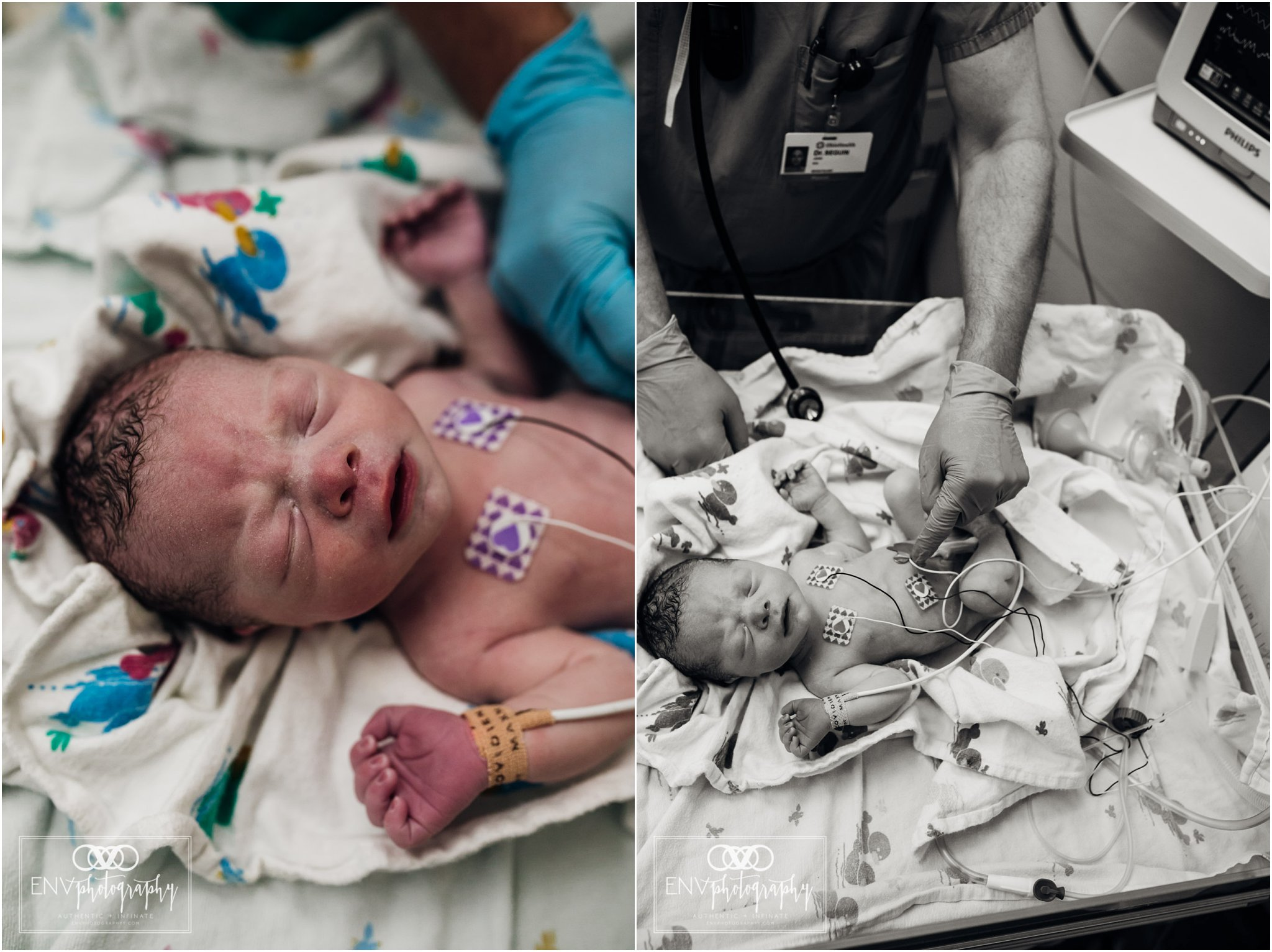 Columbus Ohio Birth Photography Riverside Hospital April 2018 (42).jpg