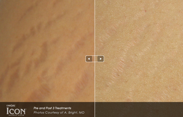 laser stretch mark treatment Icon.png