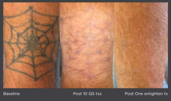 *individual results may vary Photo courtesy of Omar Ibrahimi, M.D., PhD Connecticut Skin Institute Stamford, CT