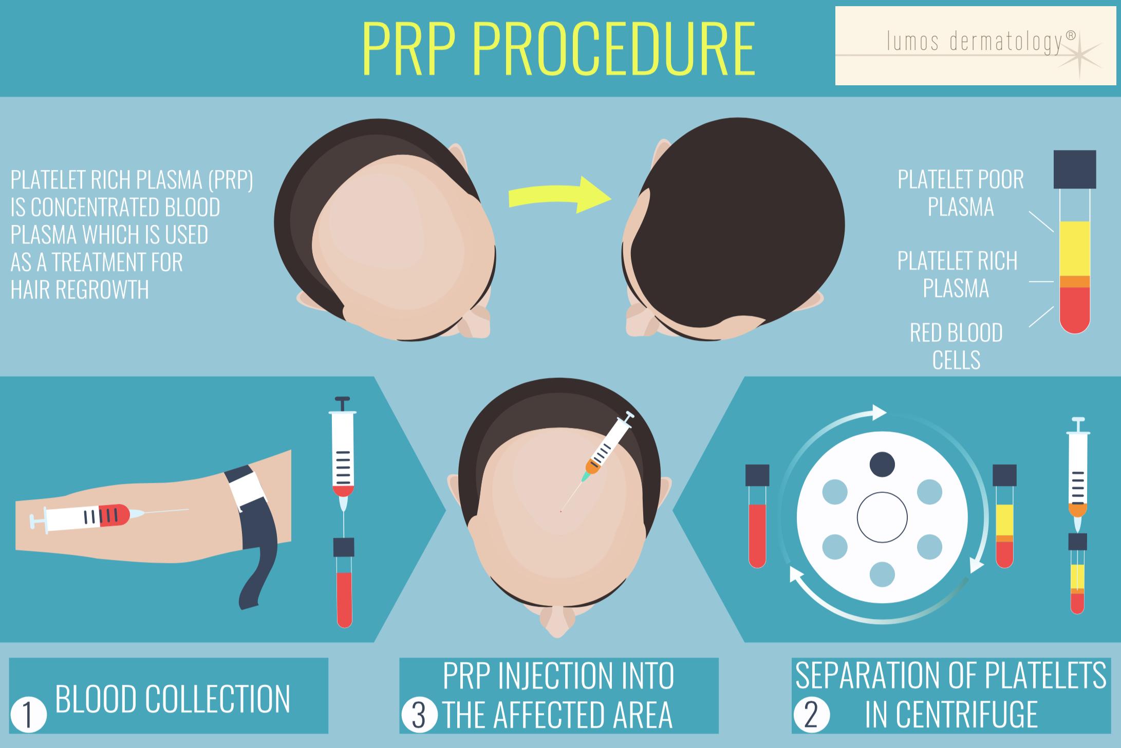 PRP procedure lumos dermatology.png
