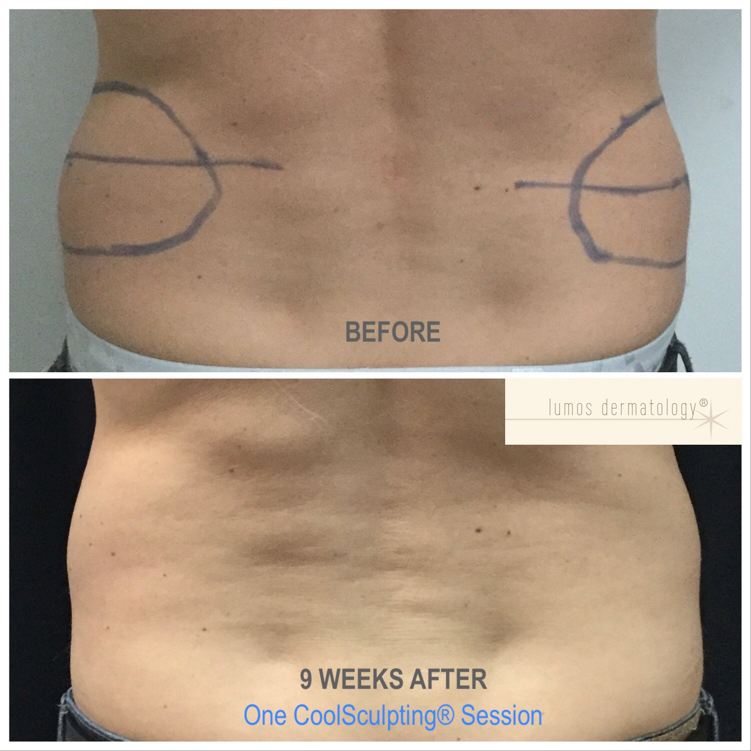 CoolSculpting flanks before and after 1 treatment.jpeg