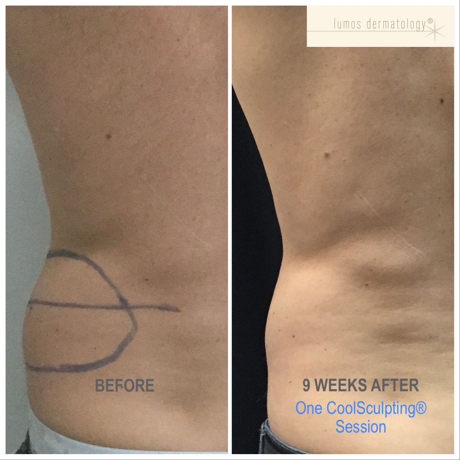 CoolSculpting left posterior flank before and after 1 treatment.JPEG