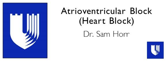 Atrioventricular Block (Heart Block).JPG