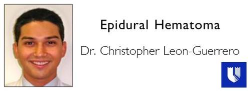 Epidural+Hematoma.jpg