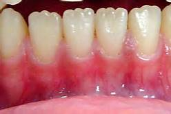 baby teeth mamelons