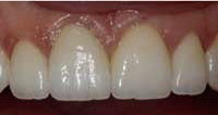 mamelons and front teeth