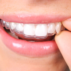 clear-retainer