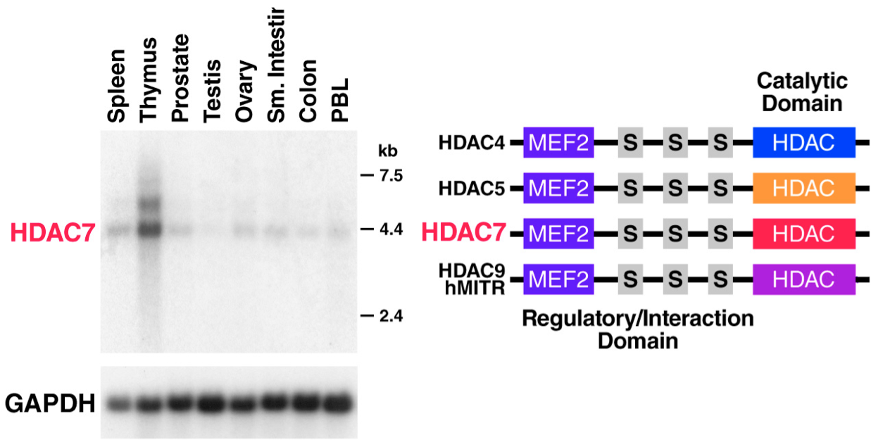 HDAC7 is a highly expressed, thymus-specific Class IIA HDAC