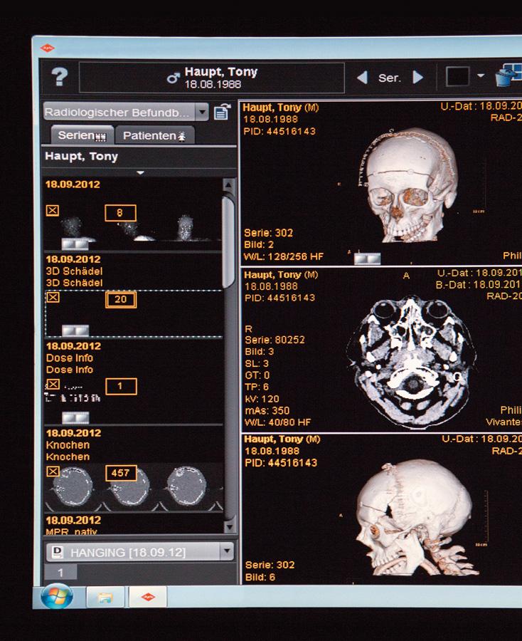 Computertomografien (3D-Scanning) wurden vom Schädel gefertigt. Diue auf den Scans erkennbaren Klammern hielten die Schädeldecke zusammen.