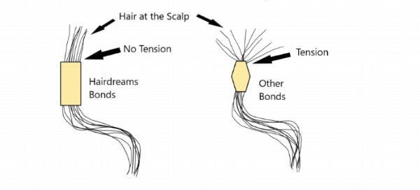 Hair Bonds.png