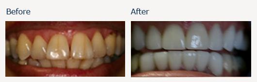 cosmetic-before1.jpg