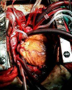 heartsurgery.jpg