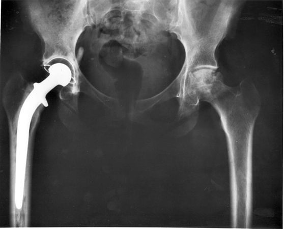 Hip- joint replacement.