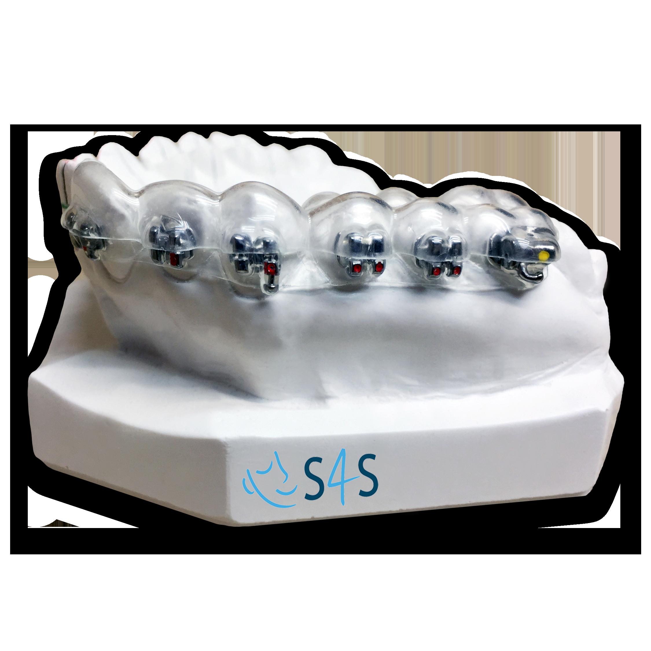 Indirect bonding system - S4S dental