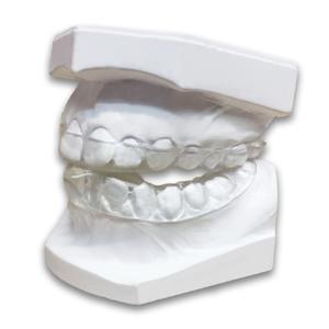 laboratory made occlusal splints s4s dental laboratory made occlusal splints s4s