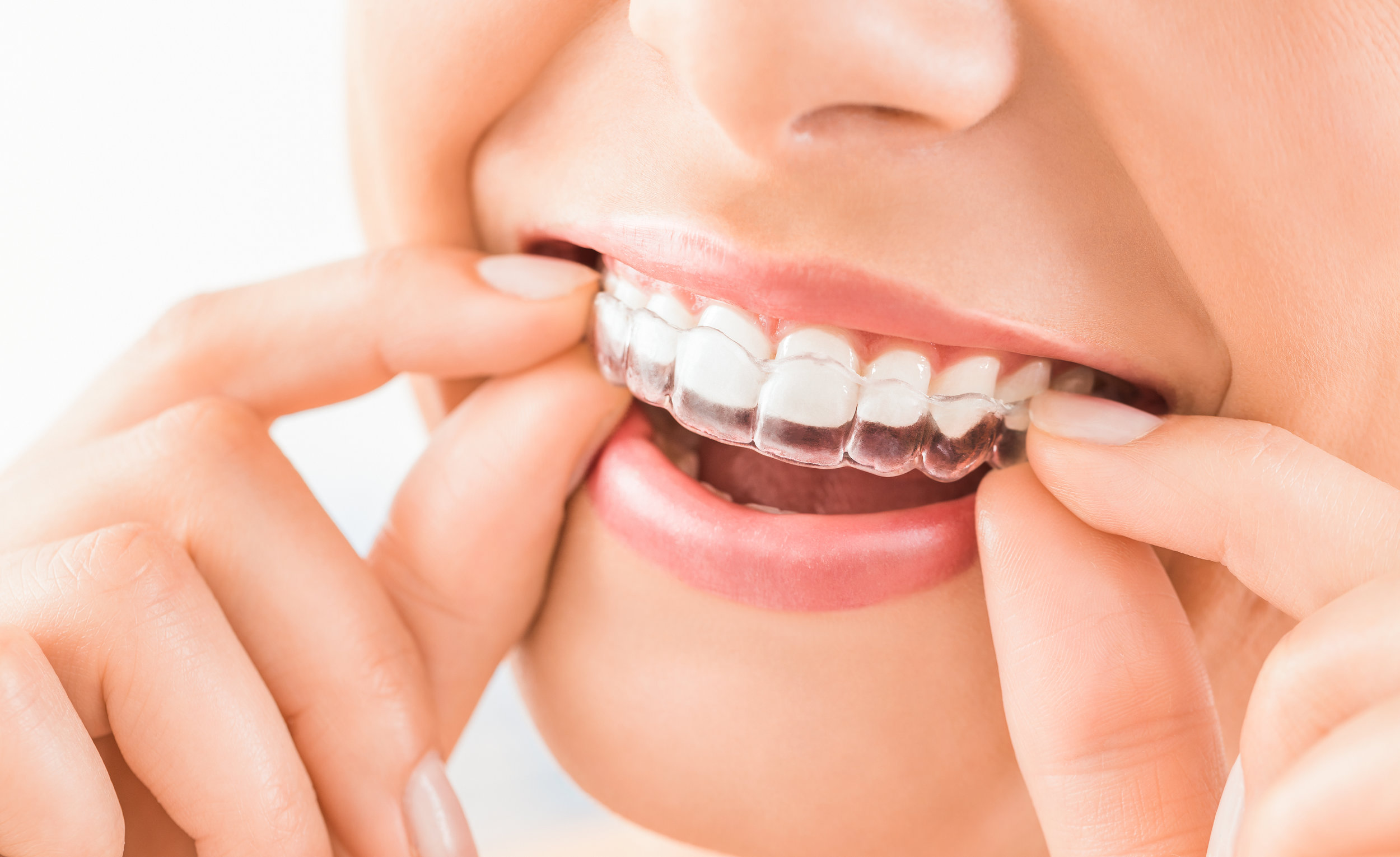 Smilelign case (worth up to £975) – which includes the initial treatment plan and scan, the number of aligners necessary to complete the case, a dedicated technician on hand to discuss your case, refinements (if and when required).