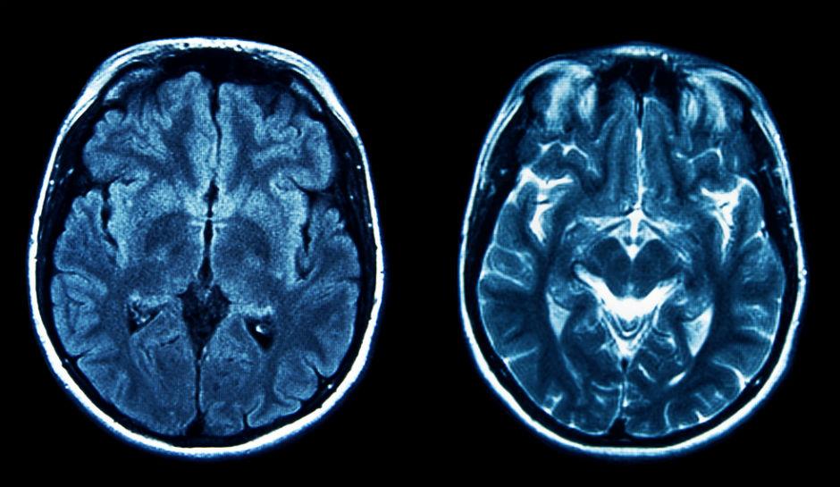 Brain-Scan.jpg