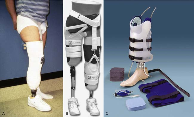 Immediate Post Operative Prosthesis (IPOP)