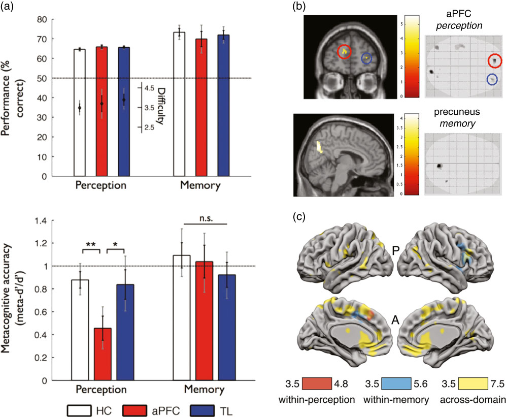 Figure 5. Different methodologies for quantifying brain structure and function shed light on the underpinnings of metacognition across domains.