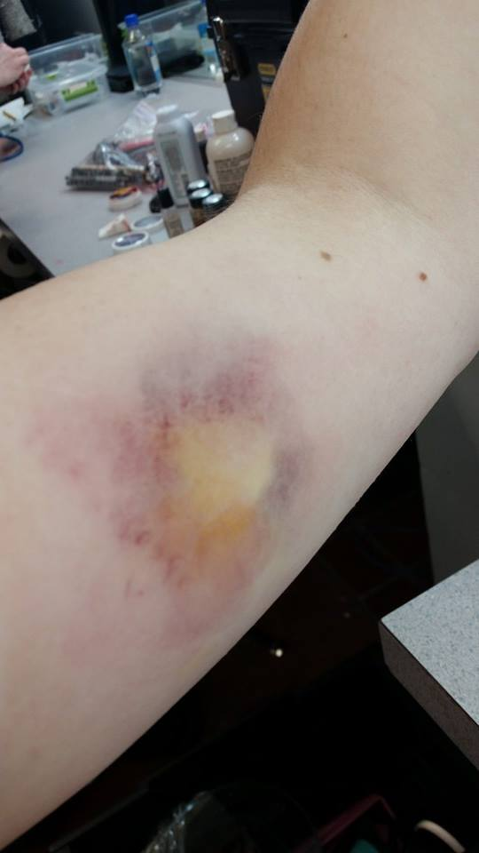 bruise, aged 3 days