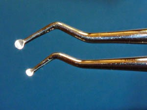 These spoon-like metal instruments are used to remove remaining tooth decay.