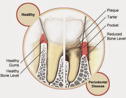 healthy tooth supporting structure vs disease structure