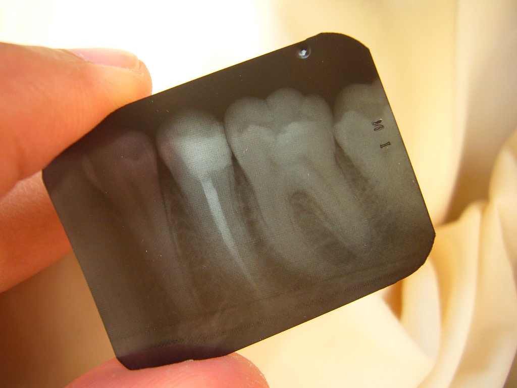 X-ray will be taken during the root canal treatment to check the length of the tooth, and to confirm the complete seal of the canal during finishing