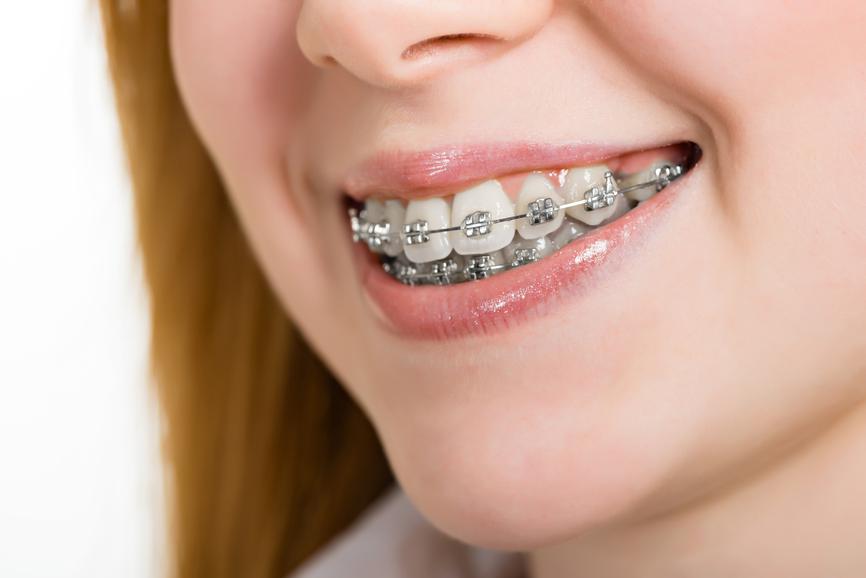 Orthodontic (Braces)