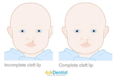资料来源: CLAPAM.ORG.MY   左为部分行的唇腭裂,右为全面行的唇腭裂。