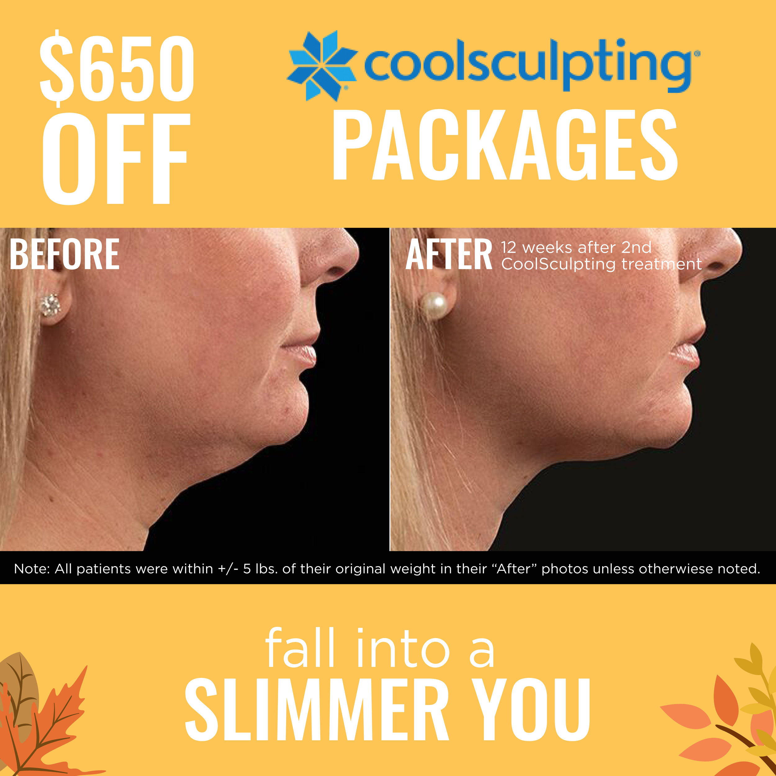 CoolSculpting Specials in San Antonio, TX for men and women with Dr. Sherry at Anew You Med Spa.