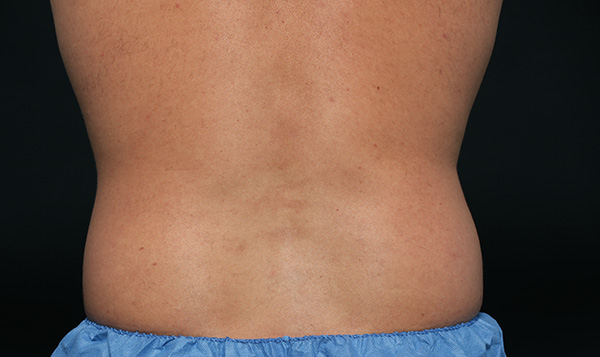 CoolSculpting results for men's side and flanks, before