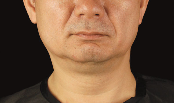 CoolSculpting Results for Men's chin, After