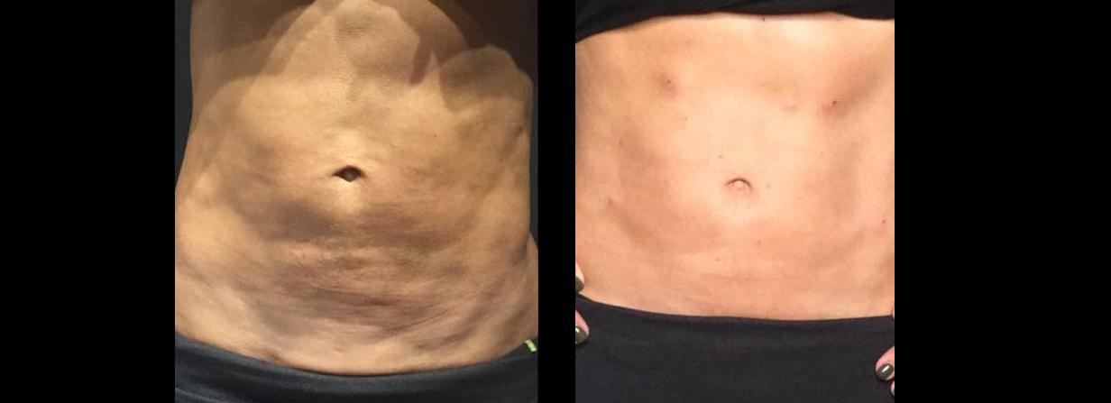 abdomen pdo 2.JPG