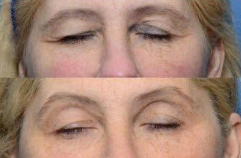 thermi eyes website 3.JPG