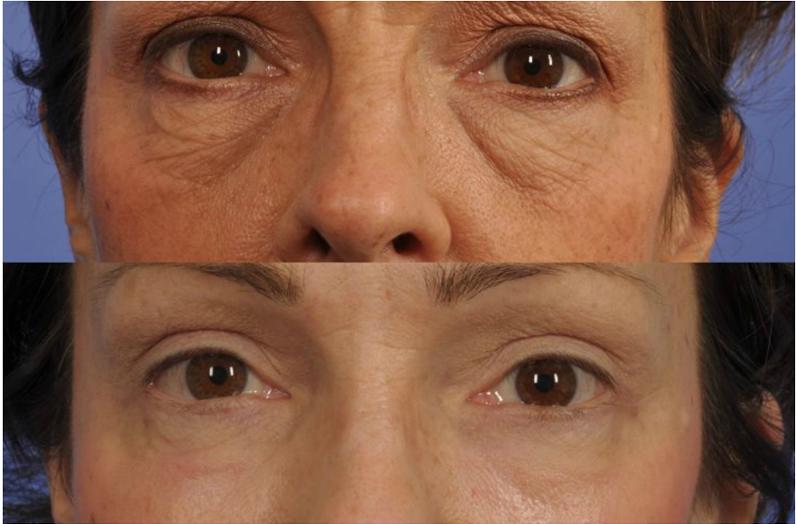 thermi eyes website 1.JPG