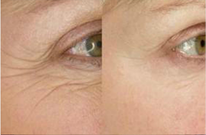 thermi eyes website 2.JPG
