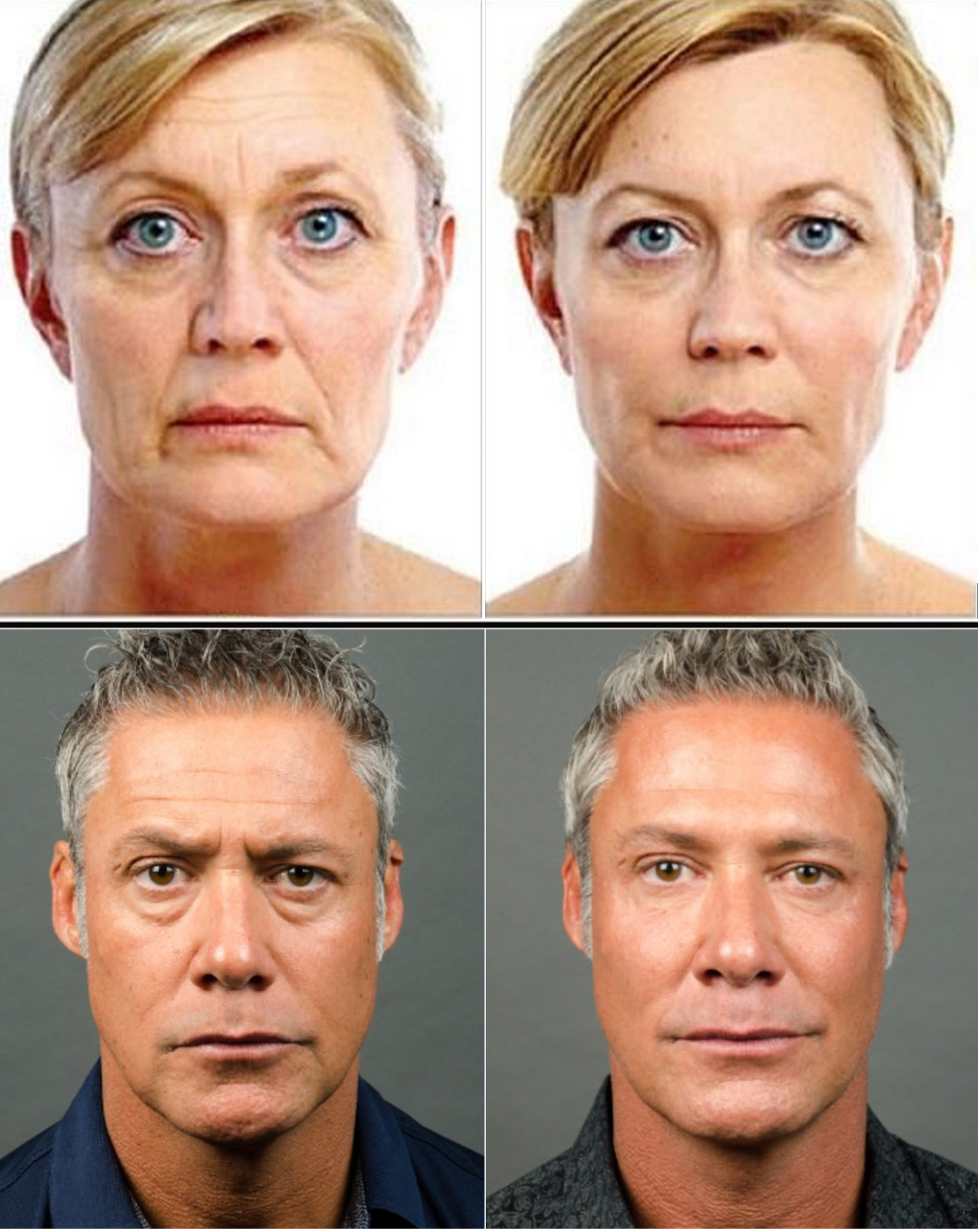 1. Liquid Facelift - Purchase 50 units of Botox and one syringe of cheek/chin/jawline filler andGet 50% off second syringe of filler!Retail $2150Treat to Complete Special - $1850