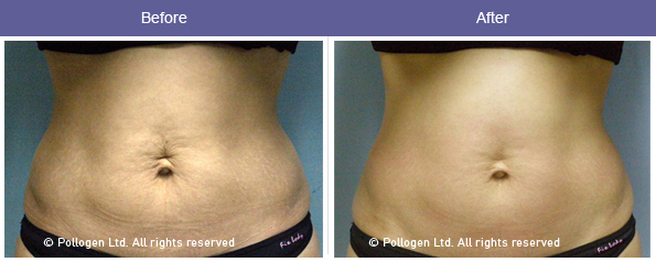 before-and-after-belly-fat-reduction-skin-tightening-with-rf-1.jpg