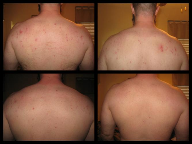 Series of 4 treatments over 2 months.