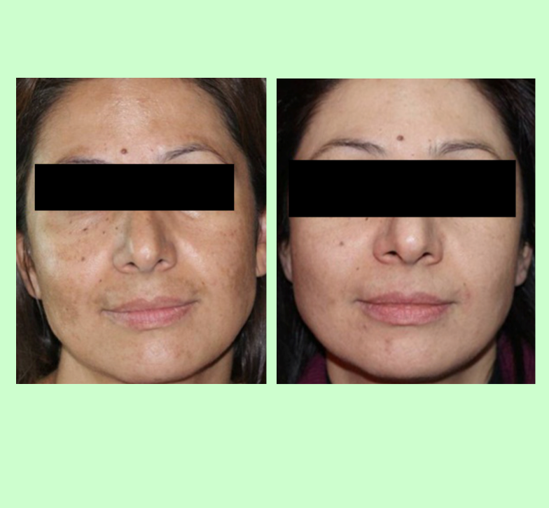 PRP for Pigmentation   Images from Dr Cayirli's published research which demonstrated the PRP was effective for treating pigmentation
