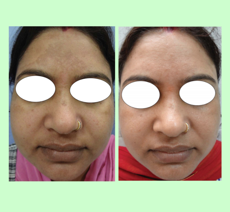 PRP for Melasma and Pigmentation   Whilst not studied extensively, Alocuro doctors notice that uneven pigmentation improves after Alocuro PRP for skin rejuvenation procedures. Images from Dr Bohara's published research