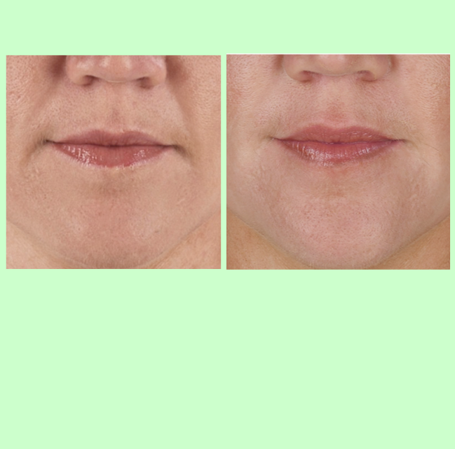 PRP for Skin Wrinkles   PRP is effective for skin wrinkles around the mouth that can be difficult to treat with other techniques