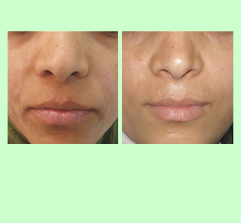 PRP improves Overall Skin Tone and Texture   PRP improves skin from the inside out. Patient notice visible signs of improvement to skin tone and texture and overall health of the skin after PRP.